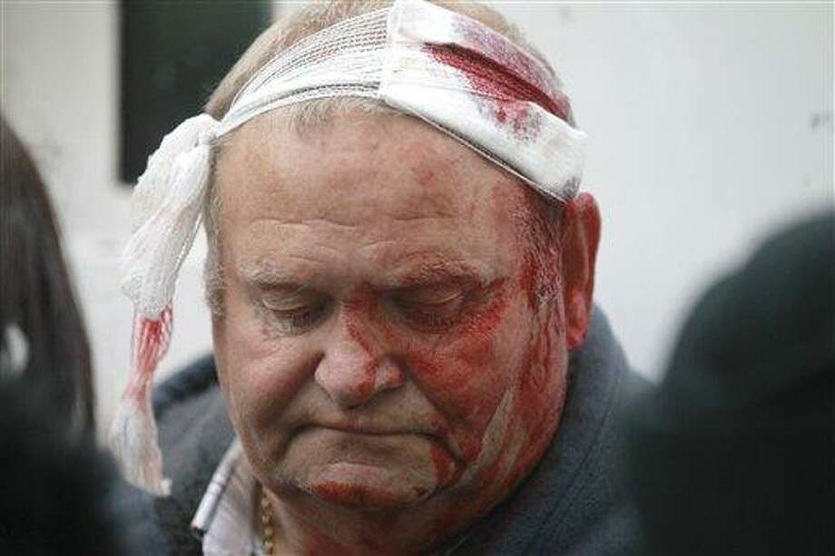 A Loyalist protester waits for medical treatment after being injured  in the centre of Belfast, Northern Ireland, Friday, Aug. 9, 2013.  A number of people, including police officers, have been injured during trouble in Belfast city centre linked to a republican anti-internment parade. Loyalist protesters attacked the police as they waited for the republican parade to arrive.  (AP Photo/Peter Morrison) Photo: AP / AP