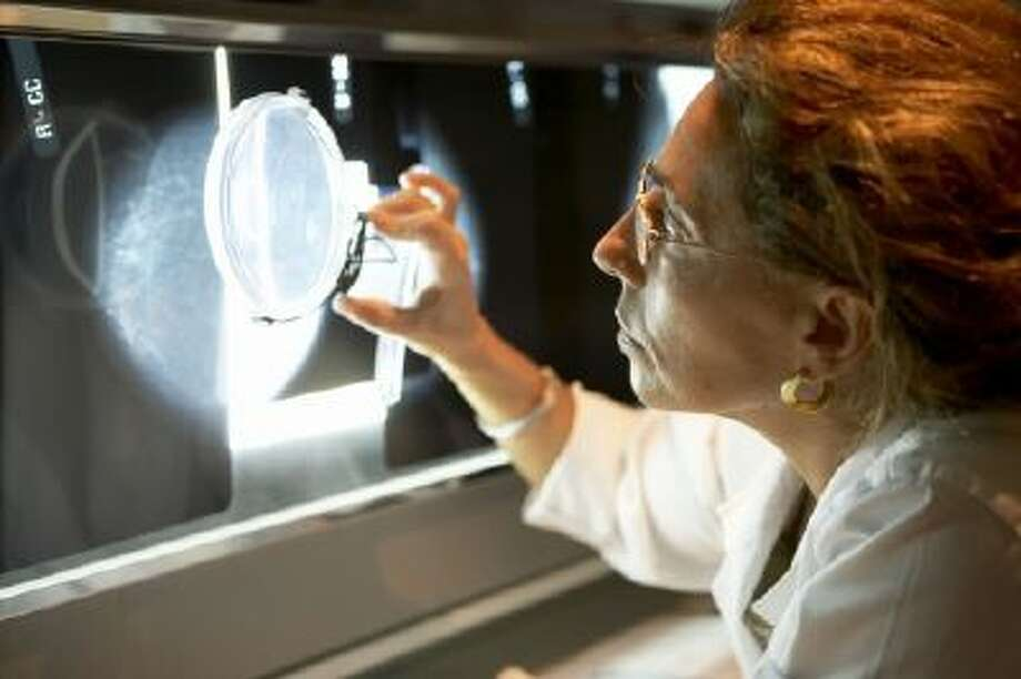 Researchers believe they have identified a molecule that could be key to preventing over-treatment of breast cancer by revealing when the early stage of the disease is likely to develop into its invasive form. Photo: Getty Images/age Fotostock RM / age fotostock RM