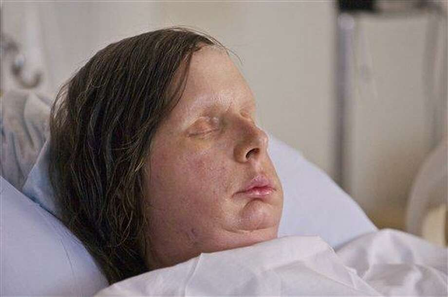 In this undated photo provided by Brigham and Women's Hospital, Charla Nash is seen after her May, 2011, face transplant at the hospital. The Connecticut woman was mauled by a chimpanzee in 2009. (AP Photo/Brigham and Women's Hospital, Lightchaser Photography) Photo: AP / Brigham and Women's Hospital