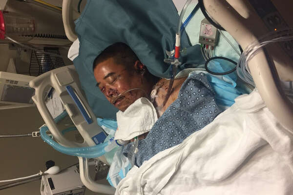 A man visiting from China is on life support in Houston after being mauled by two dogs in a Cy-Fair neighborhood.