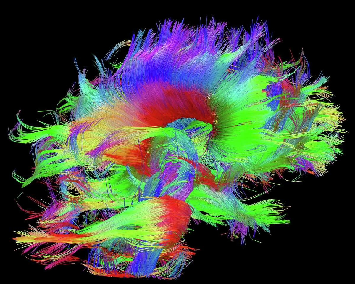 ADVANCE FOR USE MONDAY, JUNE 22, 2014 AND THEREAFTER - This image provided by the Laboratory of Neuro Imaging in June 2015 shows pathways of signals in the brain from the Connectome Scanner dataset. The fibers are color-coded by direction: red is left-right, green is front-back and blue is up-down. (Courtesy of the Laboratory of Neuro Imaging and Martinos Center for Biomedical Imaging, Consortium of the Human Connectome Project - www.humanconnectomeproject.org, www.loni.usc.edu via AP)