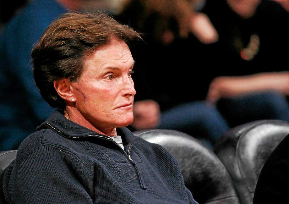 Former Olympic athlete Bruce Jenner sits with stitches and a scar on his face as he attends the NBA basketball game between the Dallas Mavericks and Los Angeles Lakers in Los Angeles on Jan. 16, 2012. Photo: AP Photo/Danny Moloshok  / FR161655 AP