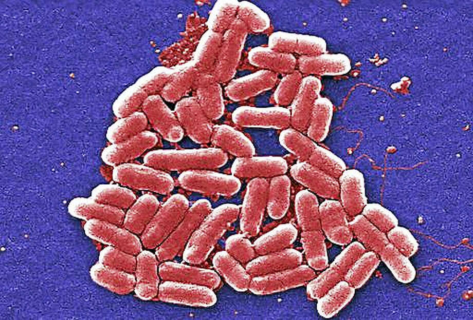 This 2006 colorized scanning electron micrograph image made available by the Centers for Disease Control and Prevention shows the O157:H7 strain of the E. coli bacteria. On Wednesday, May 26, 2016, U.S. military officials reported the first U.S. human case of bacteria resistant to an antibiotic used as a last resort drug. The 49-year-old woman has recovered from an infection of E. coli resistant to colistin. But officials fear that if the resistance spreads to other bacteria, the country may soon see germs impervious to all antibiotics. Photo: Janice Carr/CDC Via AP  / http://www.cdc.gov/ncidod/dbmd/diseaseinfo/escherichiacoli_g.htm CDC - National Center for Infectious Diseases; Division of Bac