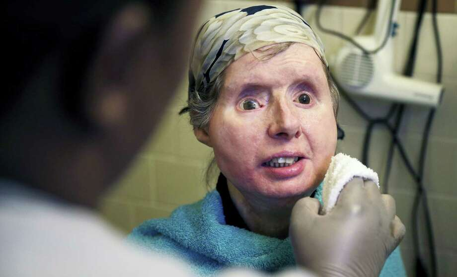 In this Feb. 20, 2015 file photo, Charla Nash smiles as her care worker washes her face at her apartment in Boston. The Connecticut woman who underwent a face transplant five years ago after being attacked by a chimpanzee is back in a Boston hospital after doctors discovered her body is rejecting the transplant. Photo: AP Photo — Charles Krupa, File  / Copyright 2016 The Associated Press. All rights reserved. This material may not be published, broadcast, rewritten or redistribu