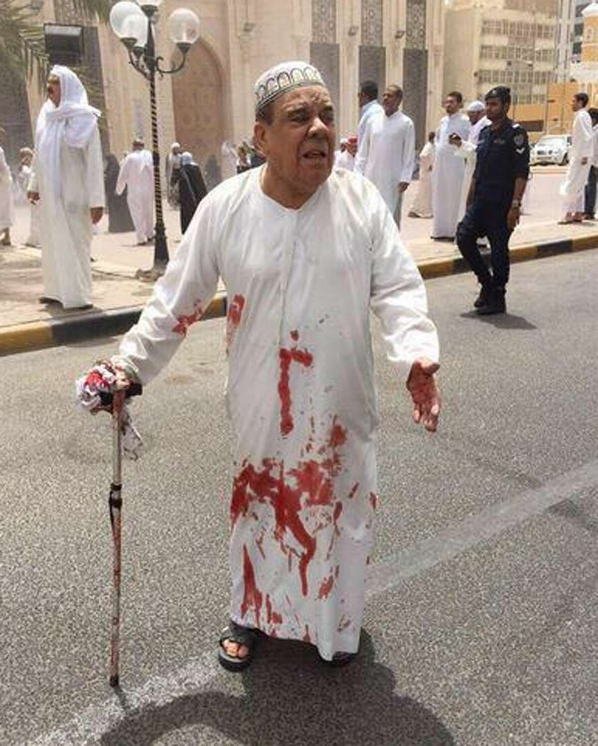 This image provided by Kuwaitna news shows a man in a blood-soaked dishdasha following of a deadly blast at a Shiite mosque in Kuwait City, Friday, June 26, 2015. A posting on a Twitter account known to belong to the Islamic State group claimed that the explosion was work of a suicide bomber wearing an explosive belt. (Kuwaitna News via AP)