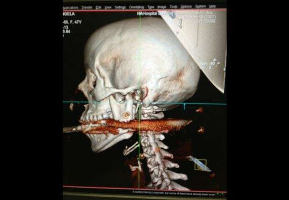"This May 6, 2013 image released Wednesday, May 8, 2013, by Rio de Janeiro State Health Department, shows the spear that was accidentally shot through the mouth of Elisangela Borborema Rosa, in the coastal city of Arrial do Cabo, Brazil. Brazilian health officials say the 28-year-old woman ""miraculously""survived after a harpoon entered her mouth and struck her cervical spine. Officials said that the woman's husband was cleaning his spear gun when it accidentally went off, firing the harpoon that injured his wife. (AP Photo/Rio de Janeiro State Health Department) Photo: AP / Rio de Janeiro State Health Department"