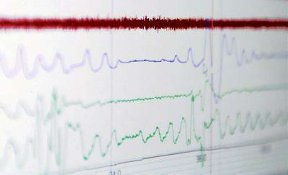 Instruments show a flatline in a breathing pattern, followed by the patient's waking up to start breathing again.