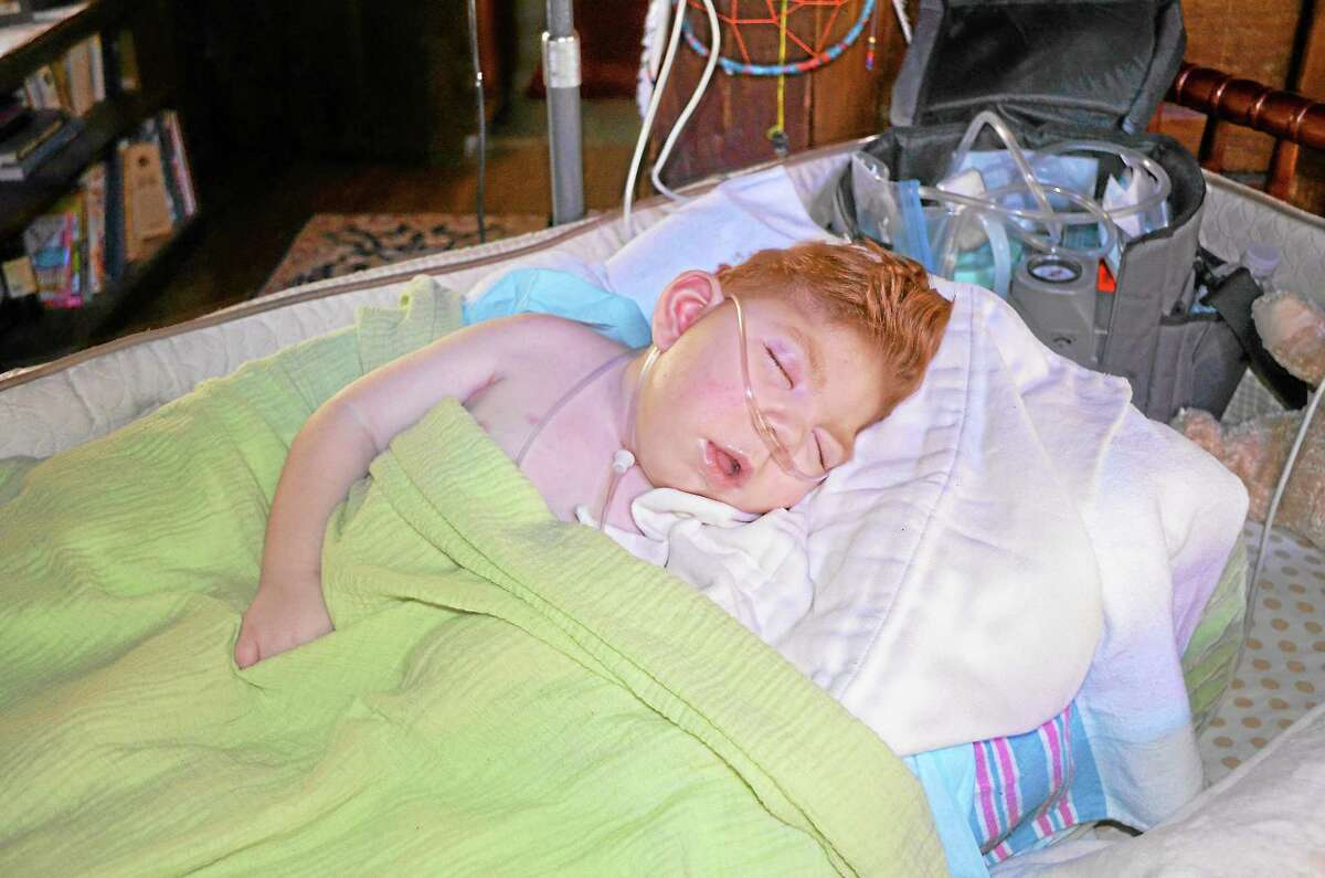 Finnegan Straub suffers from one of only 11 diagnosed cases of Microcephaly-Capillary Malformation Syndrome (MIC-CAP) in the world.