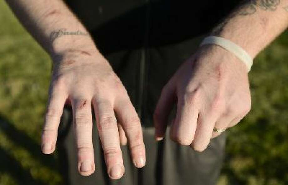 Andrew Dickehage, 22, of Longmont, shows the cuts and scrapes on his hands and arms where he was attacked by coyotes. Photo: TC / © Times-Call 2013, © MediaNews Group 2013, © Boulder Daily Camera 2013