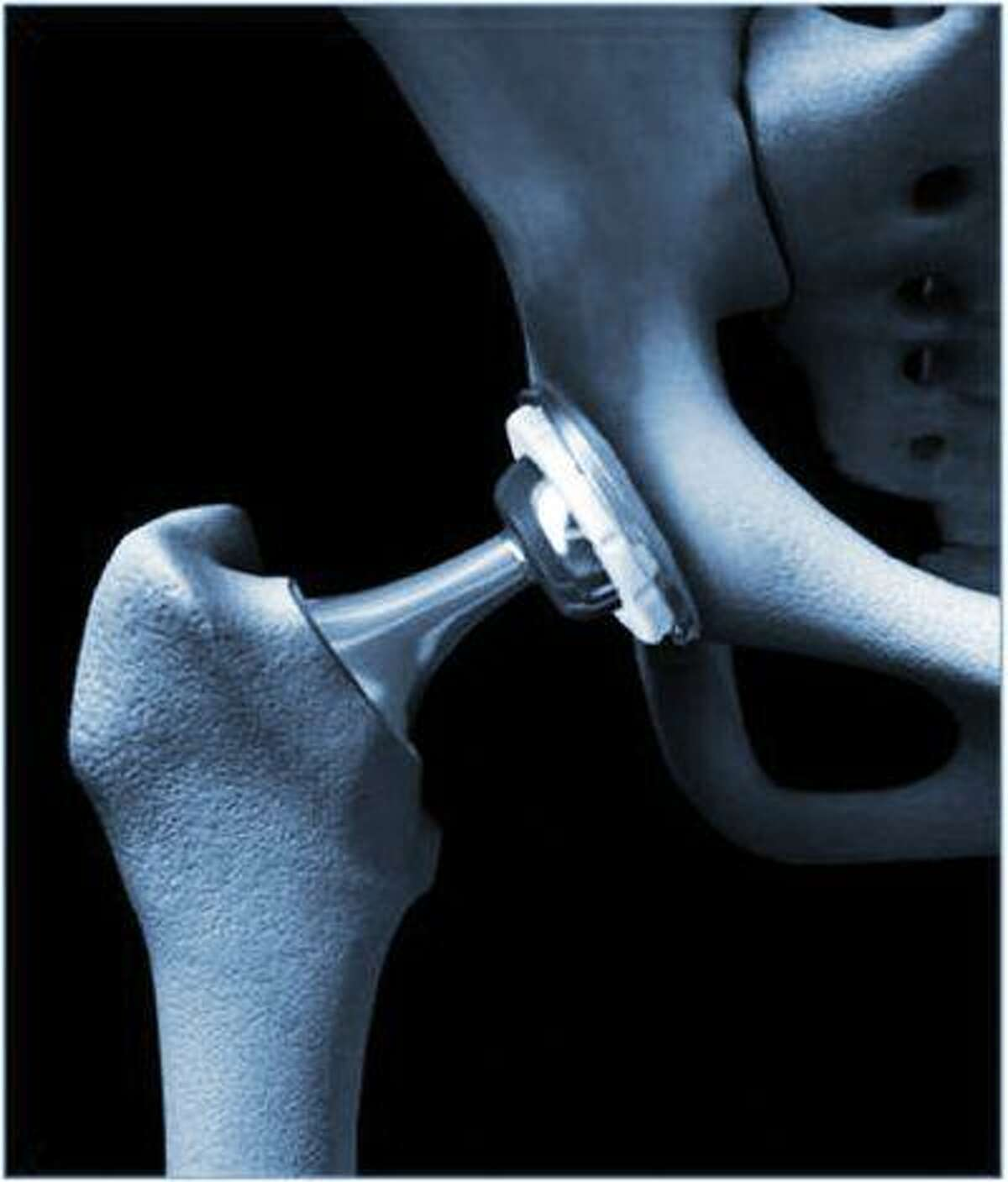 Hip replacement involves removing the joint -- the damaged bone and cartilage -- and replacing it with prosthetic parts made of metal, plastic or ceramics. In a break from past practice, some surgeons prefer to cut into the joint from the front. (Photo credit: Anthony Unger)