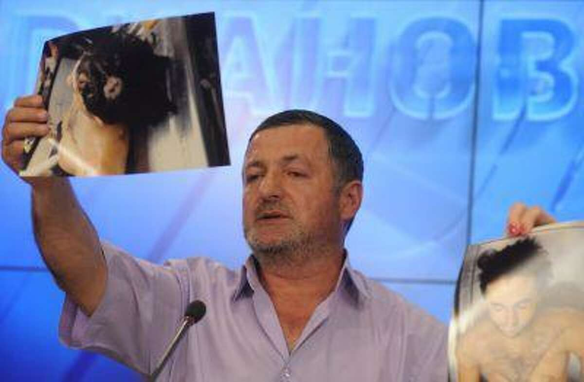 Abdulbaki Todashev, father of Ibragim Todashev, Tsarnaev brothers' friend killed by FBI in Florida, shows pictures of his son's bullet-riddled body during a press conference in Moscow, on May 30, 2013.
