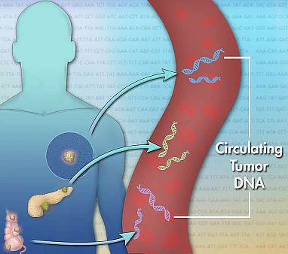 Tumor cells release small pieces of DNA into the bloodstream. These pieces, called circulating tumor DNA, may help doctors detect tumors and track their progress. Image courtesy of the National Institutes of Health. Photo: Contributed / Contributed