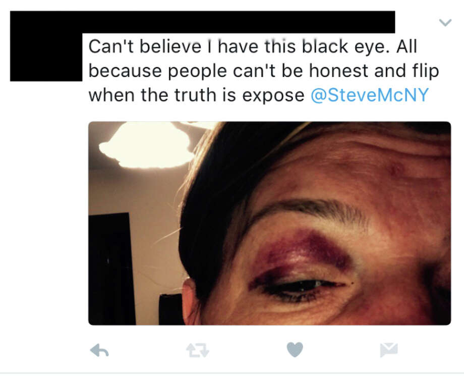 An aide to state Assemblyman Steve McLaughlin posted this photo of her blackened eye on Twitter in February.