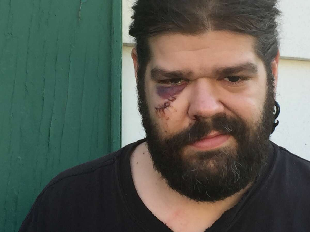 Tony Remillard was attacked by a deer that jumped into his backyard in Troy on Tuesday. The confrontation left Remillard with a black eye and a gash that requred eight stitches to close.