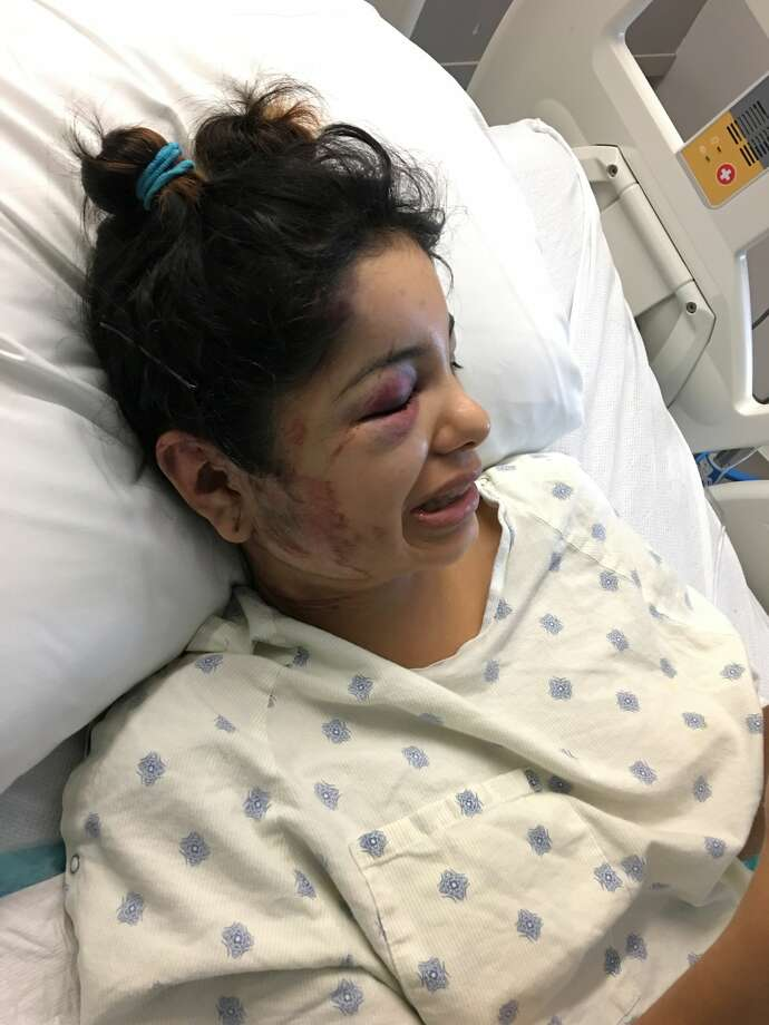 Ashley Martinez, the 21-year-old skateboarder who was run over by a car on Sept. 20, 2017, in the 5300 block of DeZavala Road, shared graphic photos of her injuries with mySA.com. Nathan Thomas Losoya, 19, has been arrested on suspicion of failing to render aid in the case. Photo: Courtesy Adriana Gutierrez