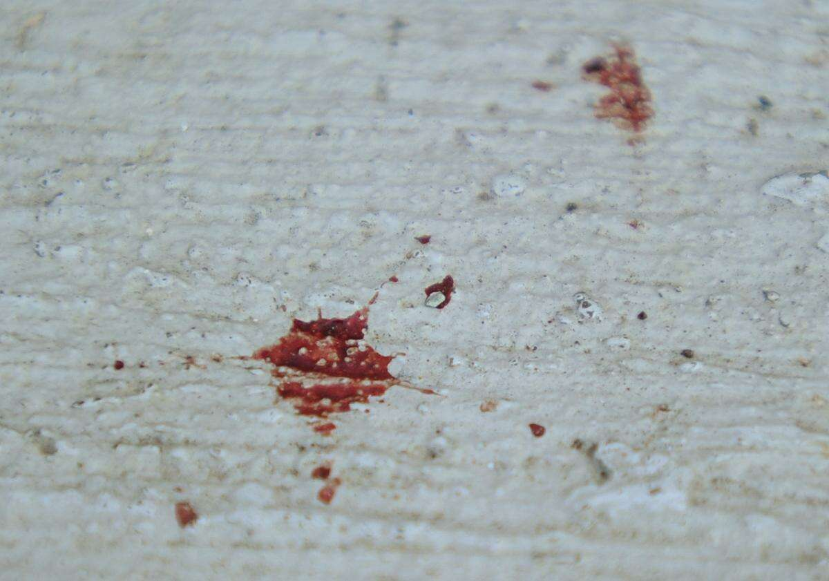Blood stains on the steps of a residence Dover Street in Bridgeport, Conn. where a man was shot ten times on Wednesday night. The 42-year-old man was outside his home when he was initially shot, then retreated into his residence where he was shot multiple more times.