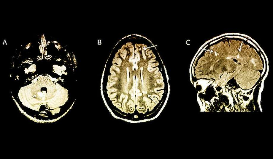 Arrows indicate abnormalities on MRI brain scans in children with no symptoms of multiple sclerosis. Photo courtesy of Yale University. Photo: Contributed / Contributed