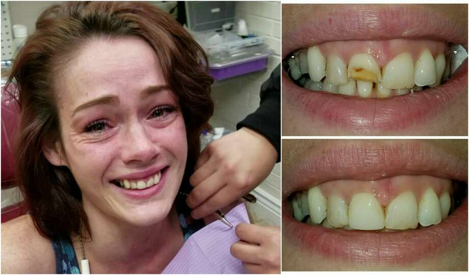A Texas dentist transformed the smile of Kyleigha Scott free of cost after one of her front teeth was damaged in a domestic violence dispute.  Photo: Storful