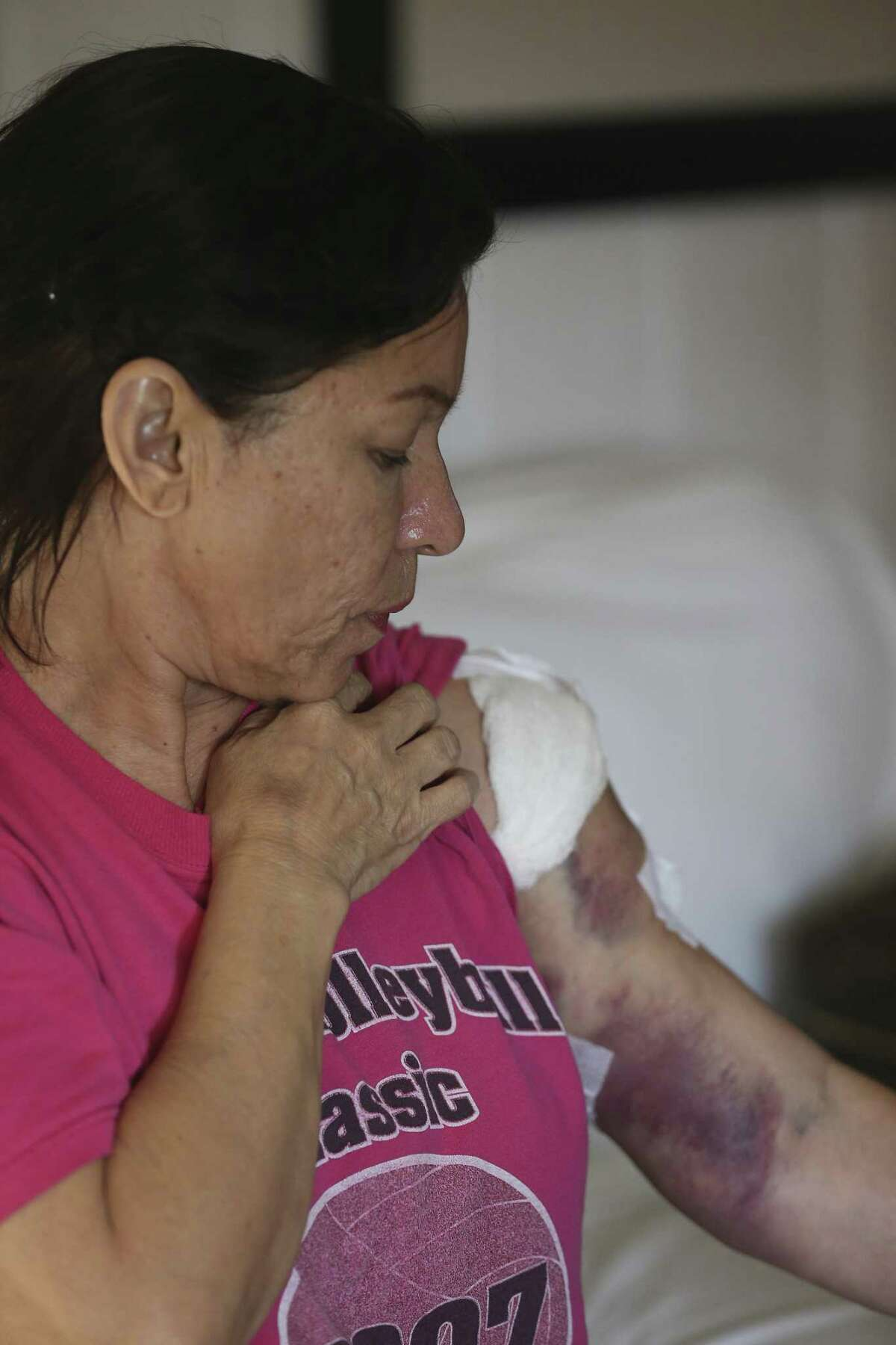Rosanne Solis, 57, shows her wounded left arm. She and her husband, Joaquin Rodriguez, 50, were attending services at the church when Devin Patrick Kelly, 26, walked in and started shooting.