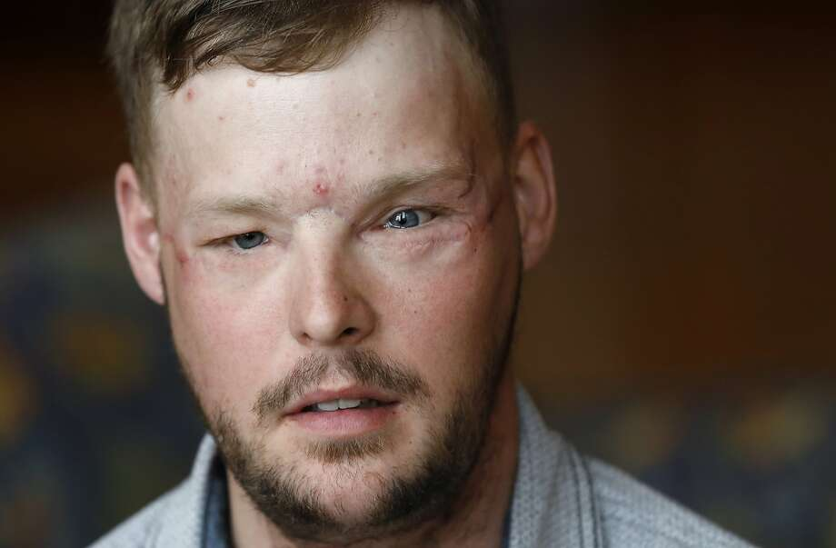 Face transplant recipient Andy Sandness speaks during an interview Friday, Oct. 27, 2017, at the Mayo Clinic in Rochester, Minn. Life with a transplanted face takes work, every day. Sandness is on a daily regimen of anti-rejection medication. He's constantly working to retrain his nerves to operate in sync with his new face, giving himself facial massages and striving to improve his speech by running through the alphabet while driving or showering. (AP Photo/Charlie Neibergall) Photo: Charlie Neibergall, Associated Press