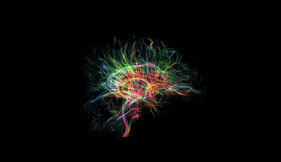 Inside the brain, electrical signals are sent and received along billions of strands of interconnected cells, called neural pathways, which carry sensory messages, thoughts and feelings between regions of the brain. Photo: Photo Courtesy Houston Methodist Neuroplasticity And Repair Lab / © 2017 Houston Chronicle