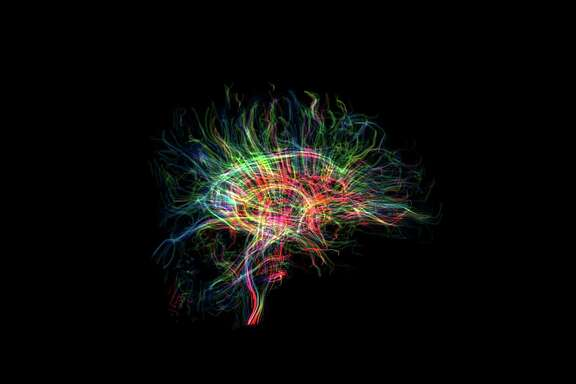 Inside the brain, electrical signals are sent and received along billions of strands of interconnected cells, called neural pathways, which carry sensory messages, thoughts and feelings between regions of the brain.