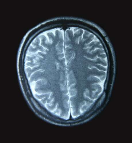 A magnetic resonance imaging scan of the human brain is show from the topview.   (Fotolia) Photo: Tan Wei Ming / 4768480