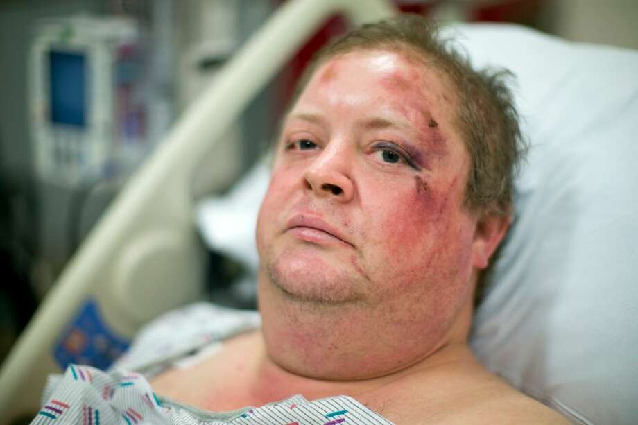 Drew Mitchem, 40, was aboard Amtrak 501 when it derailed and crashed on Dec. 18, 2017. A lifelong rail enthusiast, Mitchem suffered at least one broken vertebra and several broken ribs in the accident. A day later he spoke to The Oregonian / OregonLive in the emergency department of Tacoma General Hospital. Dave Killen / Staff Photo: The Oregonian