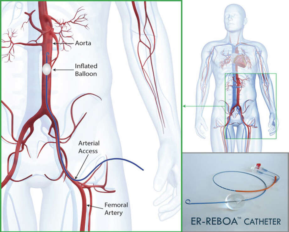 "A new tool available to doctors is a catheter that opens a balloon in the body's main artery, temporarily stopping hemorrhaging that threatens a patient's life. Doctors describe it as an ""internal tourniquet"" and call it a ""game changer"" in the field of trauma. Photo: Courtesy Of Prytime Medical / handout"