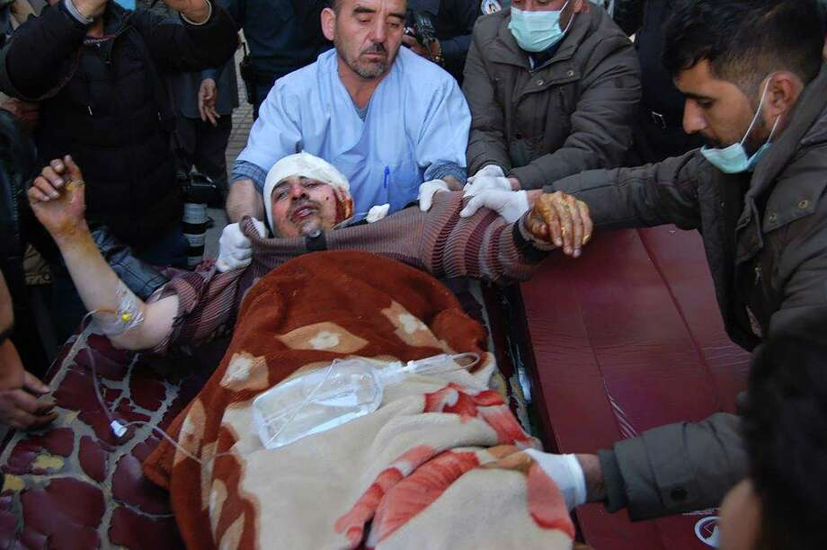 An injured Afghan man is transferred from an ambulance to a hospital following blasts at a Shiite cultural centre in Kabul on December 28, 2017. Around 40 people were killed and dozens more wounded when a suicide bomber blew himself up inside a Shiite cultural centre in Kabul on December 28, officials said, in the latest violence to hit the city.  / AFP PHOTO / DAUD YARDOSTDAUD YARDOST/AFP/Getty Images Photo: DAUD YARDOST / AFP or licensors