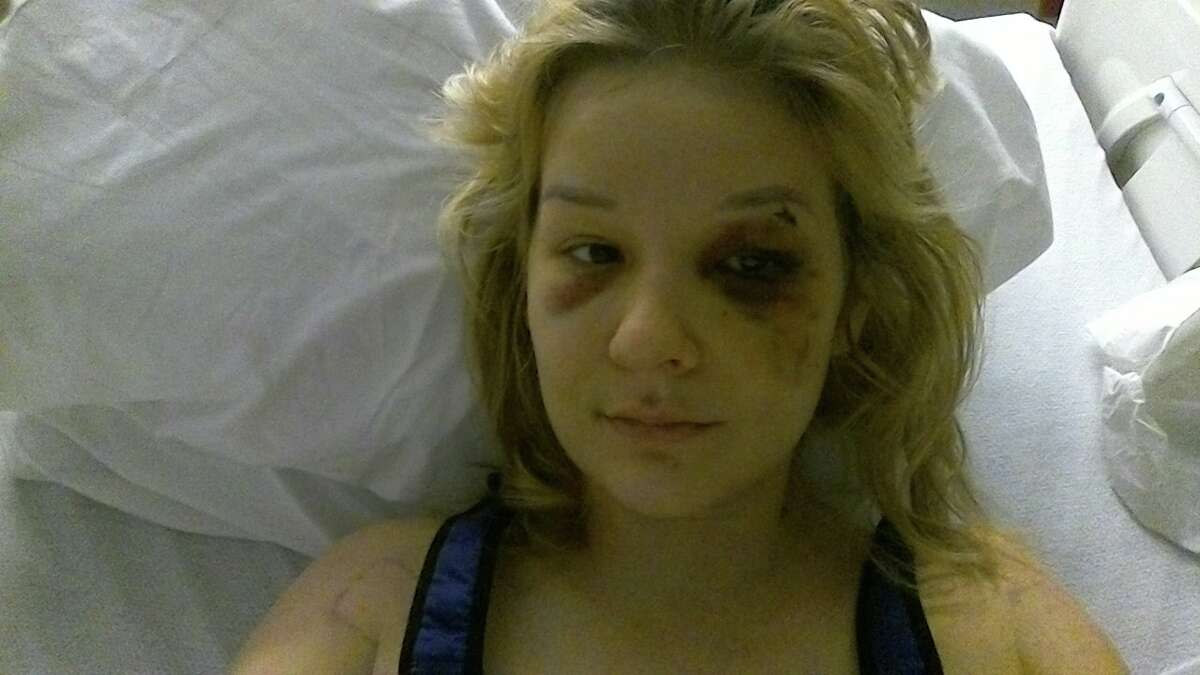 Kaila Kutzik, 22, said she was assaulted, raped and held against her will by Bishoy Elkhaliny, who was arrested on Monday.