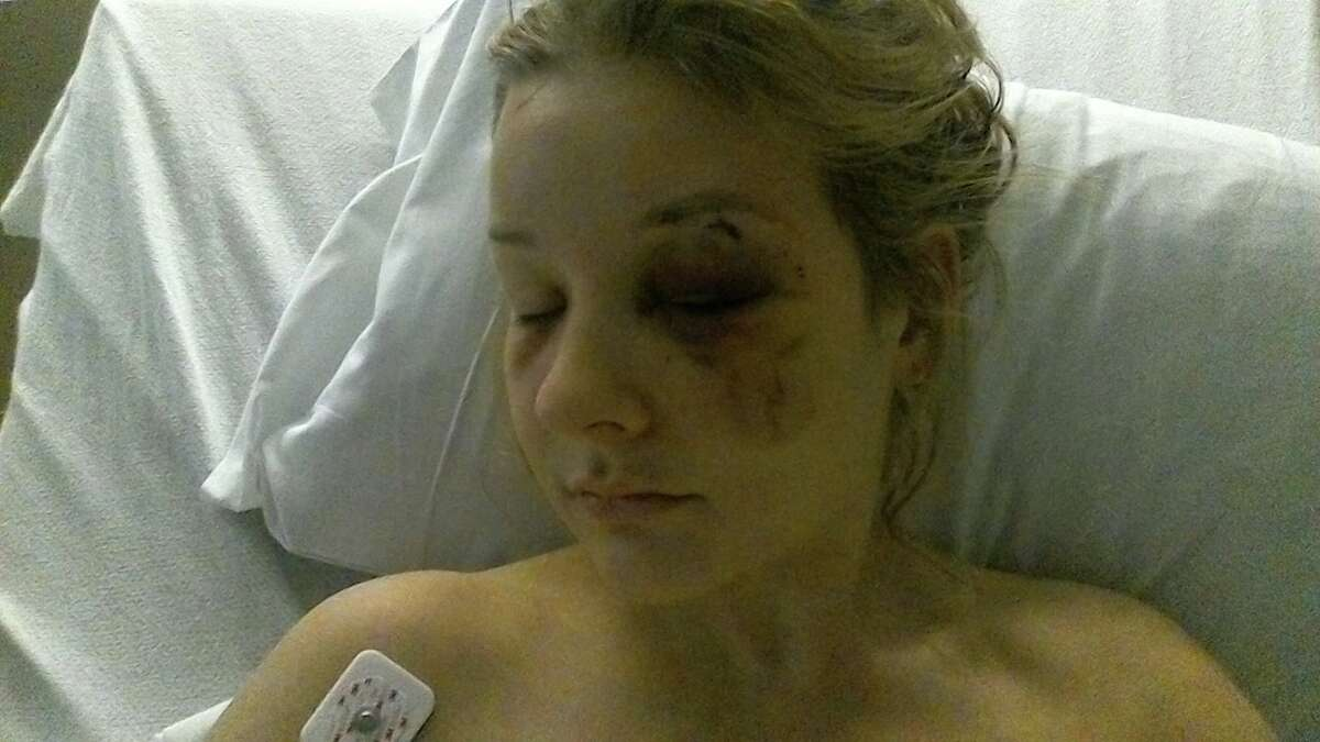 Kaila Kutzik, 22, said she was assaulted, raped and held against her will by Bishoy Elkhaliny.