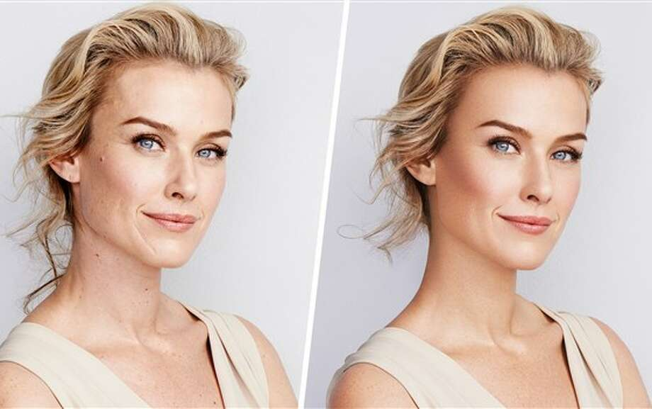 A before-and-after photo provided by CVS shows the difference when photo