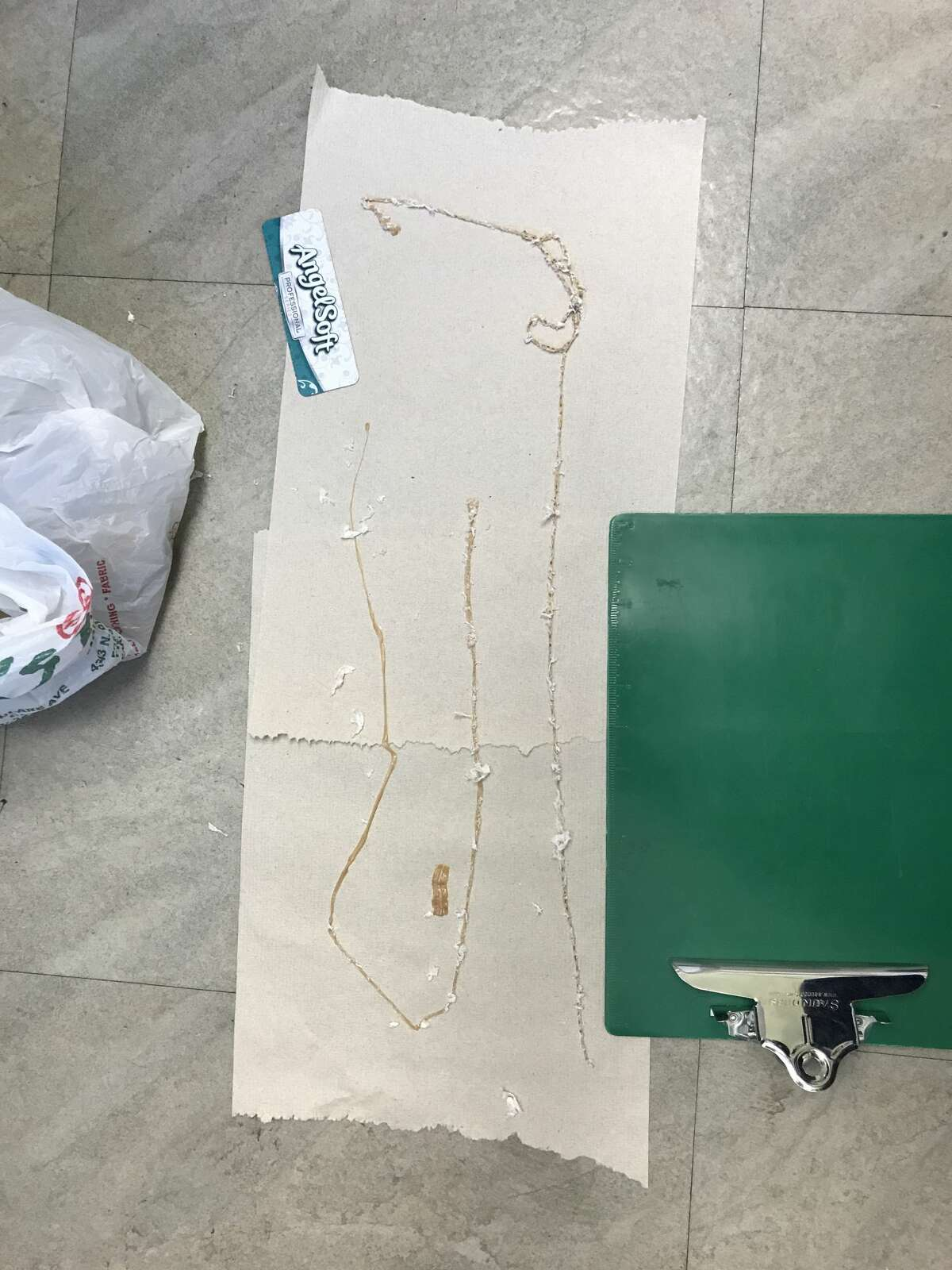 A Fresno man with a daily sushi habit had a 5 1/2-foot tapeworm lodged in his intestines, says a doctor at Fresno's Community Regional Medical Center.
