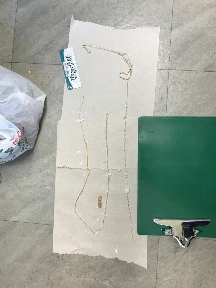 A Fresno man with a daily sushi habit had a 5 1/2-foot tapeworm lodged in his intestines, says a doctor at Fresno's Community Regional Medical Center. Photo: Courtesy Dr. Kenny Banh/This Won't Hurt A Bit Podcast