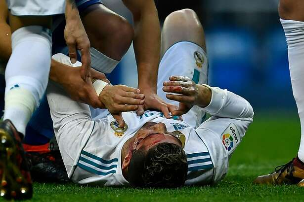 TOPSHOT - Real Madrid's Portuguese forward Cristiano Ronaldo (down) lies on the field after sustaining an injury during the Spanish league football match between Real Madrid CF and RC Deportivo de la Coruna at the Santiago Bernabeu stadium in Madrid on January 21, 2018. / AFP PHOTO / OSCAR DEL POZOOSCAR DEL POZO/AFP/Getty Images