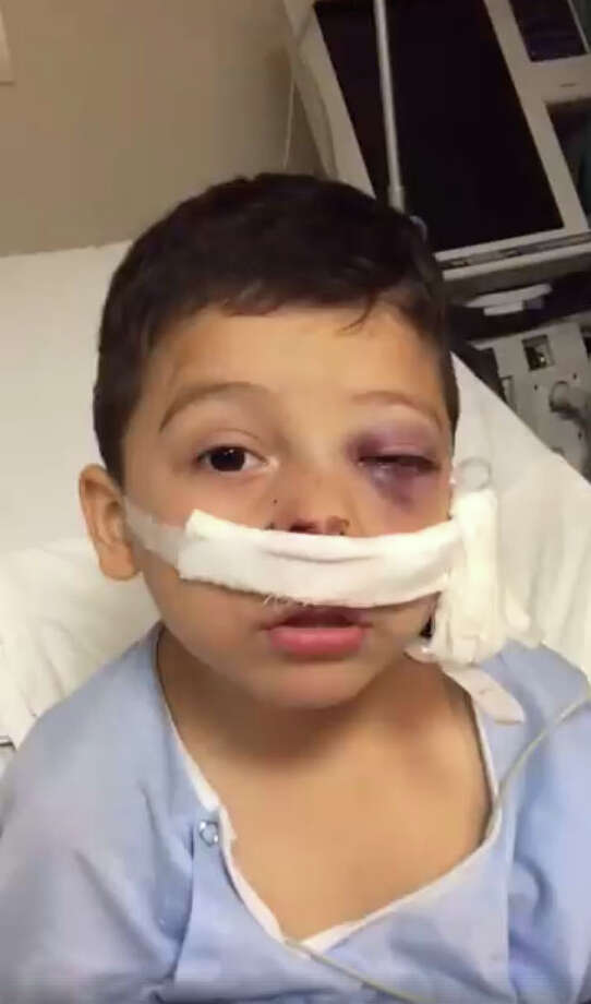 "Four-year-old Nuevo Laredo boy, Iker Prado, survived an ""armed confrontation"" that resulted in a bullet lodging into his skull Wednesday.  Photo: Facebook/NuestrasNoticiasTamaulipas"