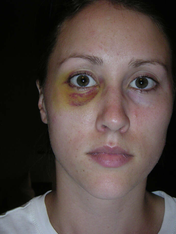 Rob Porter's ex-wife Colbie Holderness is pictured in a photo from 2005, when she says Porter gave her a black eye on an Italy trip. Photo: Courtesy Of Colbie Holderness / Courtesy of Colbie Holderness