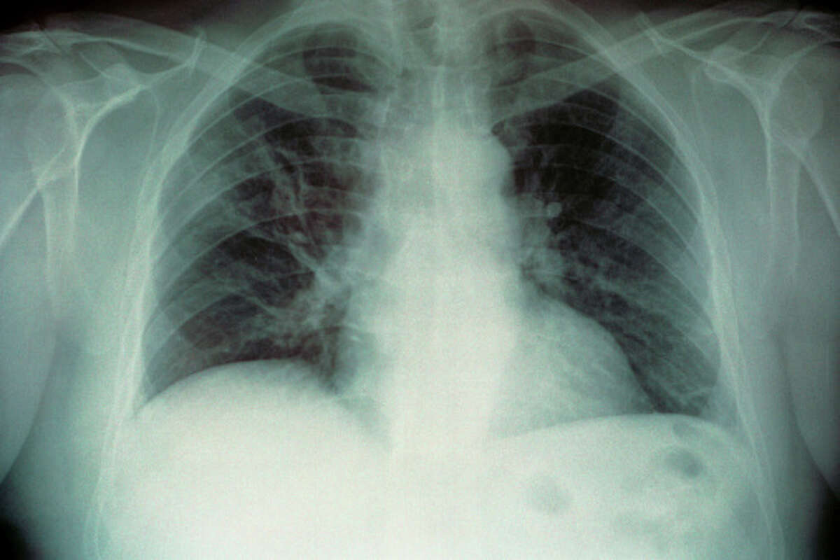 Legionnaires' disease is a respiratory disease caused by Legionella bacteria. It sometimes causes a severe form of pneumonia. Source: Centers for Disease Control