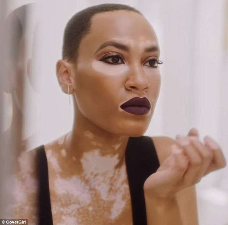 Meet Covergirl S First Model With Vitiligo And She S From Texas Houston Chronicle