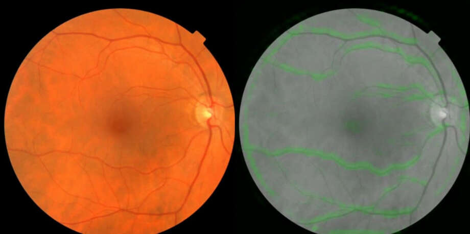 A scan of the back of the human eye (left), and how Google's algorithm sees it. The green highlights are the parts the algorithm found most helpful in predicting blood pressure. MUST CREDIT: UK Biobank/Google. Photo: UK Biobank/Google