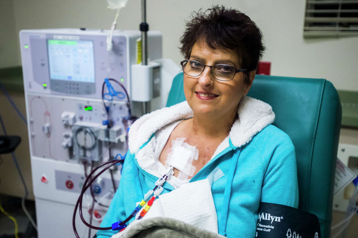 Angela Wojda poses for a portrait as she receives her dialysis treatment at DaVita Dialysis on Wednesday, Feb. 21, 2018. Wojda undergoes dialysis three times a week. (Katy Kildee/kkildee@mdn.net)