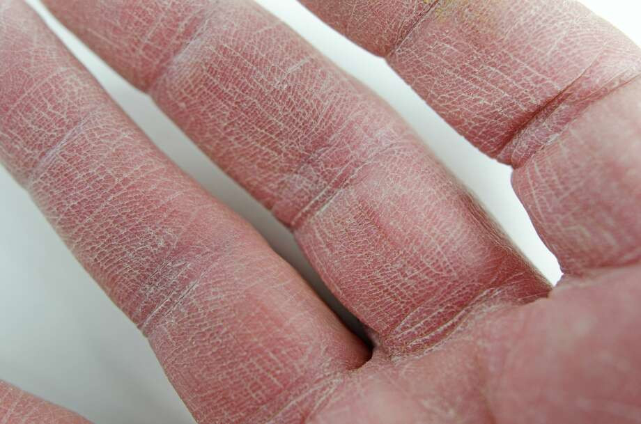 rough skin on hands