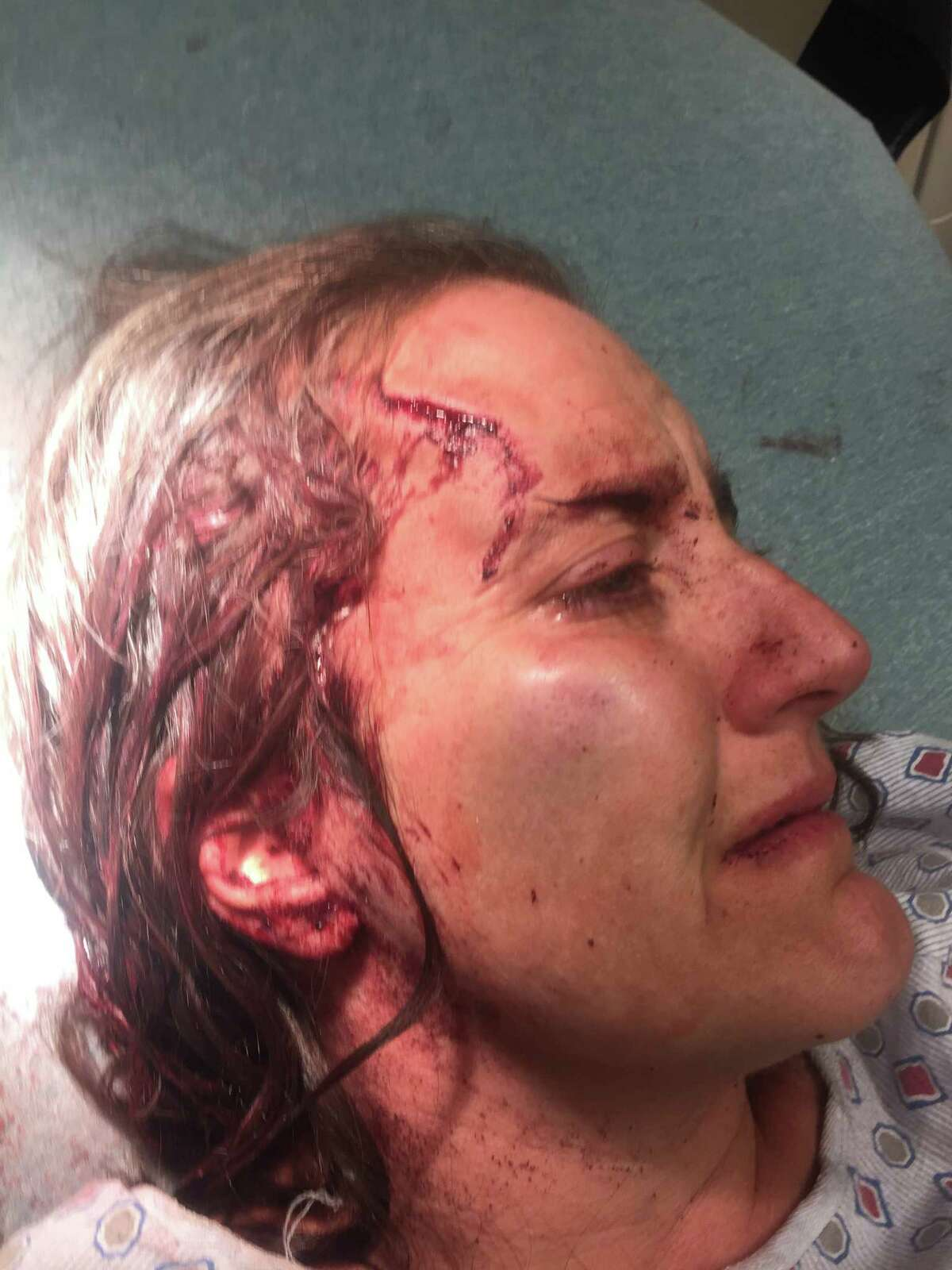 Nicola Cottone's head was split open by Schenectady police lieutenant whose excessive force was documented by the department. (Provided)