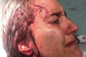 Nicola Cottone's injuries are seen in photo as part of lawsuit filed in federal court. (Provided)