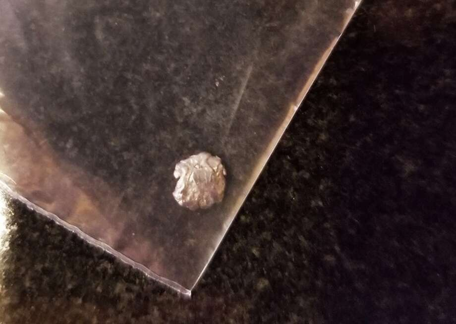 Bullet fragments removed from student's neck. Photo: KSBW