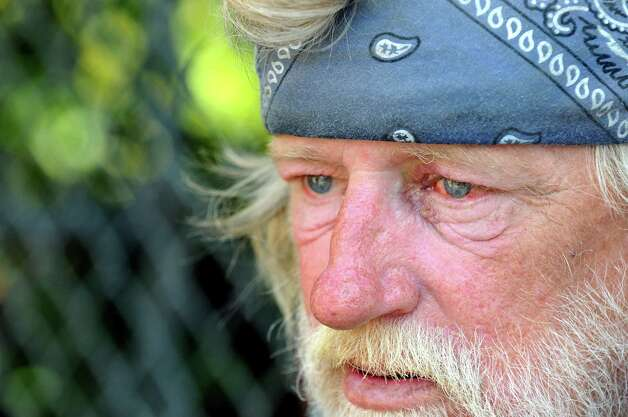 Tom's face reflects a life of addiction and homelessness, especially after getting jumped, on Tuesday, Aug. 11, 2009, in the South End in Albany, N.Y. (Cindy Schultz / Times Union) Photo: CINDY SCHULTZ