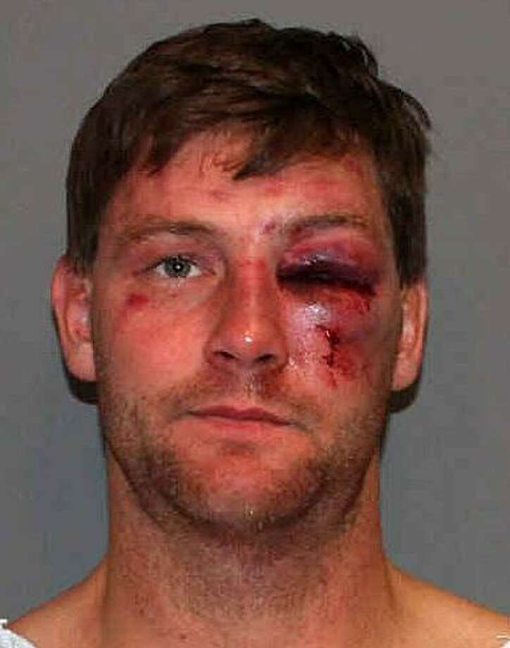 Christian Garnett, a former Darien High School assistant football coach, filed a federal lawsuit in October 2015, saying he was bloodied and beaten as a result of excessive force at the hands of five Norwalk officers during a traffic stop Oct. 31, 2013. Photo: Contributed / Norwalk Police Department / Westport News contributed