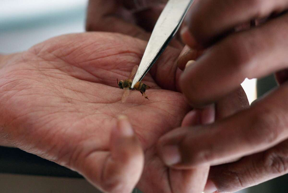 An apitherapy practitioner administers a bee sting to the hand of a patient at Cibubur Bee Center on April 15, 2007 in Jakarta, Indonesia. Bee acupuncture or apitherapy, is an alternative healing practice where bee stings are used as treatment for various conditions and diseases. A Spanish woman died recently after undergoing a bee sting treatment, according to a recent journal report.