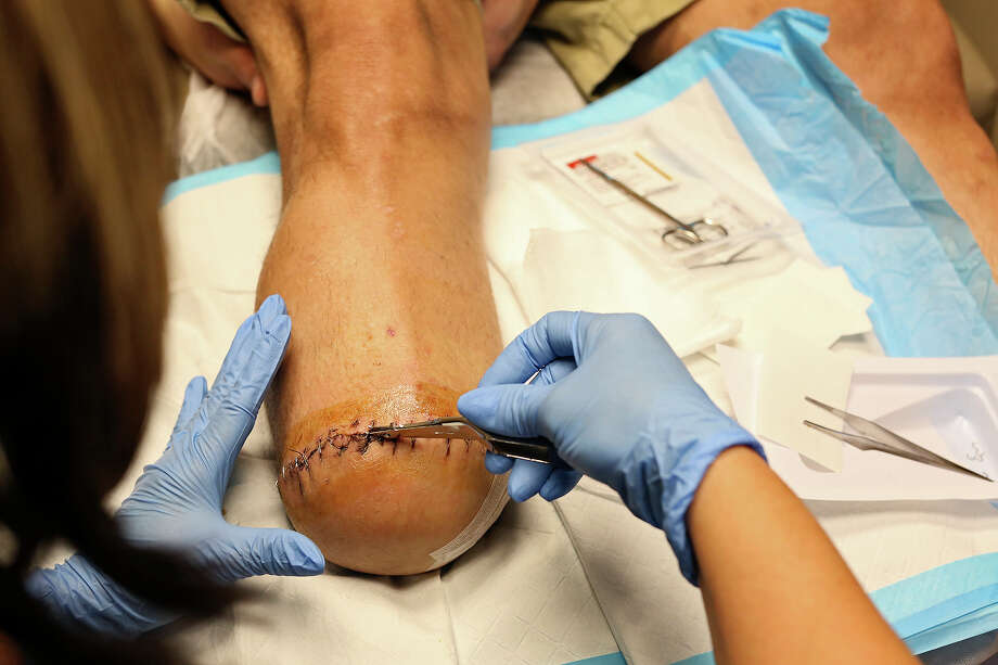Angela Abrego takes out some of the staples and stitches from the amputation of Isaac Rodriguez's lower leg at Peripheral Vascular Associates in San Antonio on Feb. 28, 2018. Photo: SAN ANTONIO EXPRESS-NEWS / SAN ANTONIO EXPRESS-NEWS